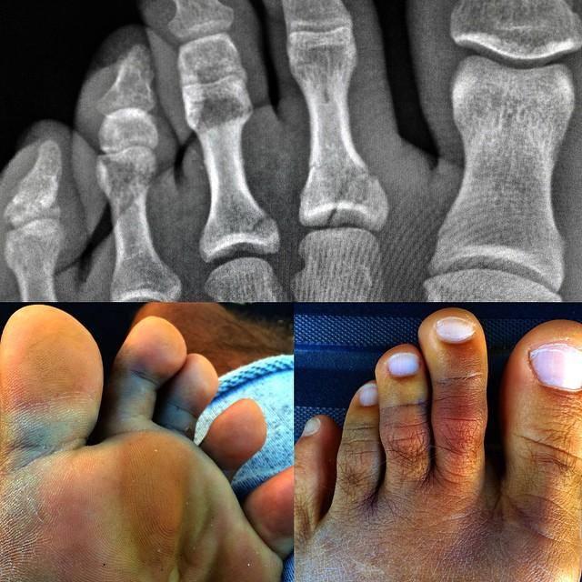 Kelly Slater s'est cassé le pied